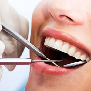dental_cleanings_exam_3