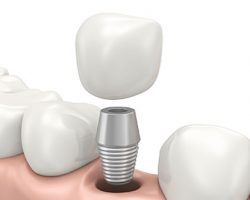 dental_implants_1 Alma, MI Dentist | Mid-Michigan Dental Excellence