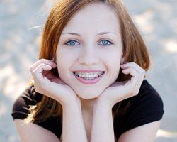 Orthodontics Alma, MI Dentist | Mid-Michigan Dental Excellence